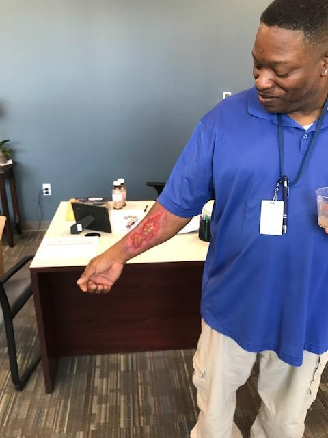 "Teacher shows ""disaster"" makeup job on arm"